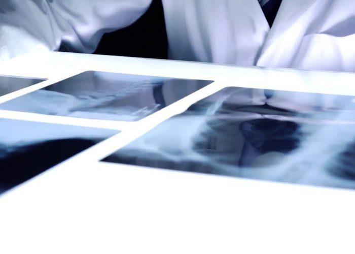 isercion-laboral-diagnostico-por-imagenes